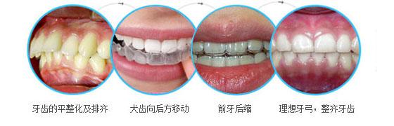 戴牙套矫正阶段 主要包括四个步骤:第一